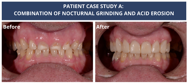 PATIENT CASE STUDY A-Bite before and after-v1