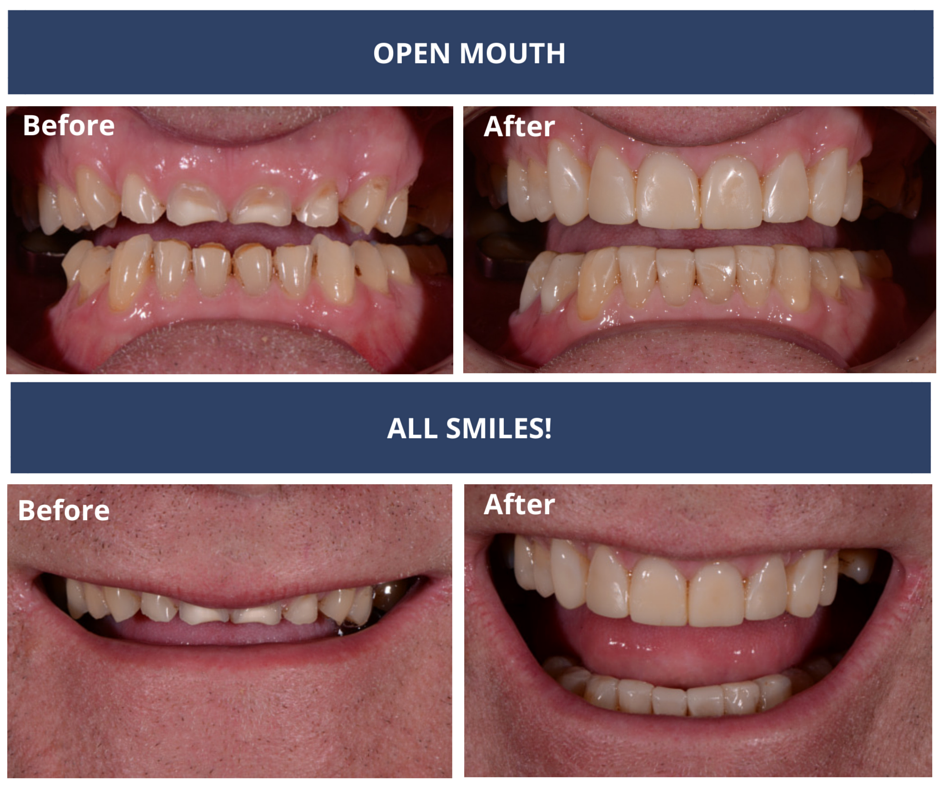 PATIENT CASE STUDY A-open and smile before and after